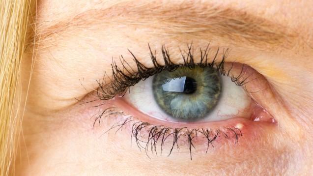 """Ein Gerstenkorn äußert sich oft in Form eines typischen """"Eiterpickels"""", der sich meist innerhalb einer Woche von selbst öffnet. (Foto: eyeQ / stock.adobe.com)"""
