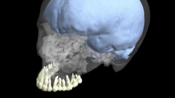 Gehirn und Zähne entwickelten sich unabhängig voneinander