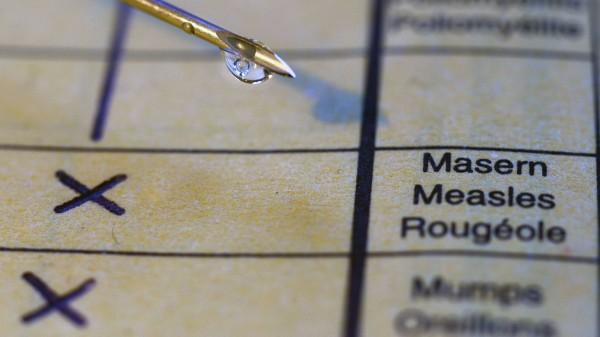 Masern-Patientin in Westfrankreich gestorben