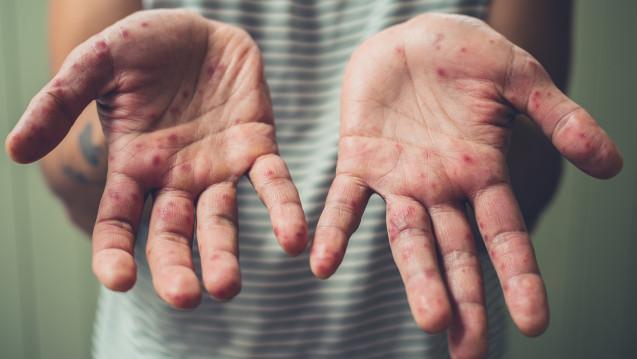 In der schwedischen Stadt Göteborg haben sich über den Jahreswechsel ungewöhnlich viele Menschen mit den Masern infiziert. (Foto: LoloStock / stock.adobe.com)