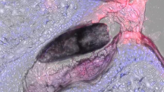 Interessant für die Anwendung von Nanopartikeln an der Haut ist ihr Eindringen in die Haarfollikel. (c / Foto: Universität des Saarlandes)