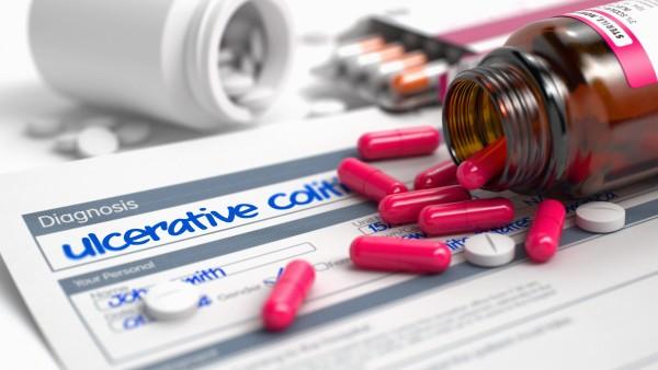 Möglicher Auslöser chronischer Darmerkrankungen entdeckt