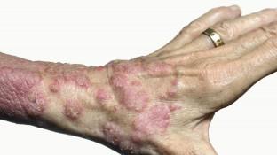 Wenn Psoriasis die Gelenke angreift