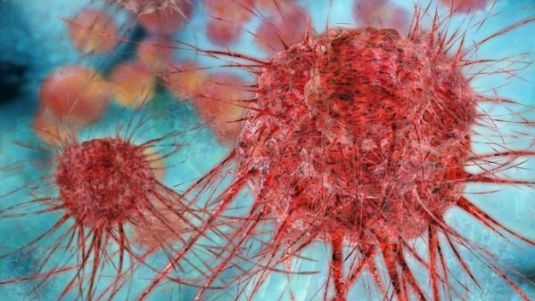 Bildgebendes Verfahren spürt Melanom-Metastasen auf