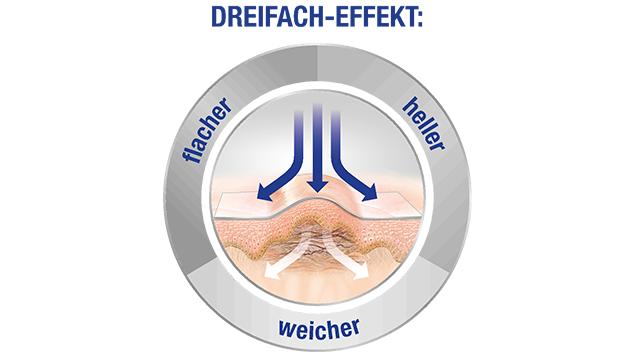 Abb: Hansaplast®Narben Reduktion Polyurethanpflaster aktivierenden hauteigenen Regenerationsprozess im Narbengewebe. ©Hansaplast®