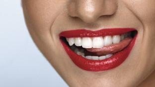 Lucky lips