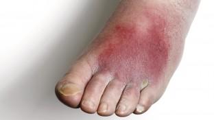 Zellulitis – eine Infektionskrankheit