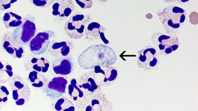 Naegleria fowleri ist ein amöbenähnlicher Flagellat der als fakultativer Parasit den Menschen befallen kann. (Bild: CDC)