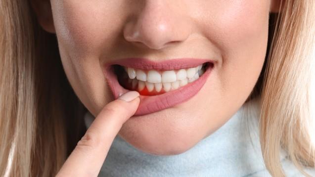Eine akute Gingivitis ist relativ häufig, aber auch unkompliziert und heilt meist nach wenigen Tagen wieder aus. (Foto: Pixel-Shot / stock.adobe.com)