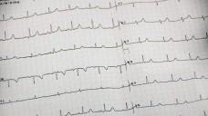 EKG-Kontrollen sind unerlässlich wenn zur Hepatitis-C-Therapie Amiodaron gegeben wird. (Foto: Petra Beerhalter/Fotolia)