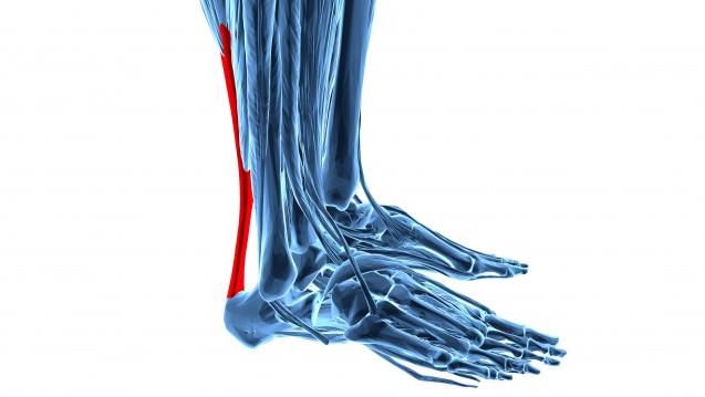 Risse der Achillessehne sind eine bekannte Nebenwirkung der Fluorchinolone. (Foto:goanovi / Fotolia)