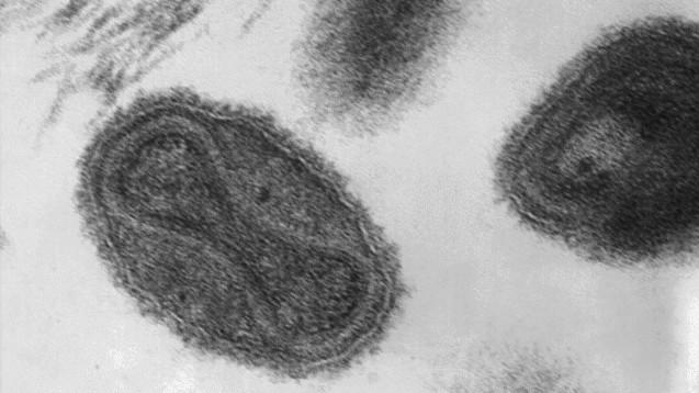 Pockenviren unter dem Elektronenmikroskop. (Foto: CDC / Dr. Fred Murphy)