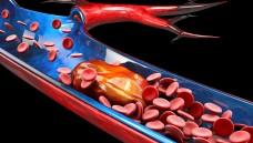Blutgerinnsel können überall im Körper auftreten. Der Januskinase-Inhibitor Tofacitinib scheint in hohen Dosierungen bei Patienten mit Rheumatoider Arthritis Lungenembolien zu provozieren. (s / Foto: tussik / stock.adobe.com)