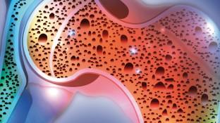 Pharmako-logisch! UPDATE: Osteoporose