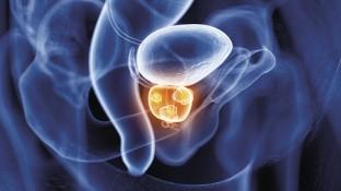Pharmakotherapie des Prostatakarzinoms