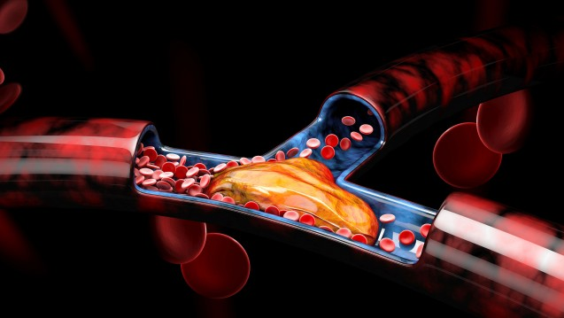 Bei Tofacitinib (Xeljanz) dürfen Ärzte bei Patienten mit einem erhöhten Risiko für Lungenembolien maximal 5 mg zweimal täglich verordnen, dies empfiehlt der PRAC vorläufig. Grund sind erhöhte Mortalitäten und Embolien unter Tofacitinib in einer Rheumatoiden-Arthritis-Studie unter der erhöhten Dosierung. ( r/ Foto: tussik / stock.adobe.com)