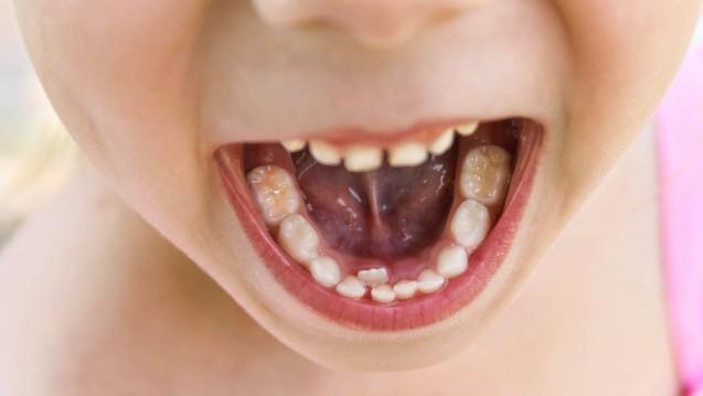 Probleme mit den Zähnen? Für Londoner Eltern ist einer Untersuchung zufolge nicht der Zahnarzt die erste Anlaufstelle. (Foto:Victoria М / stock.adobe.com)