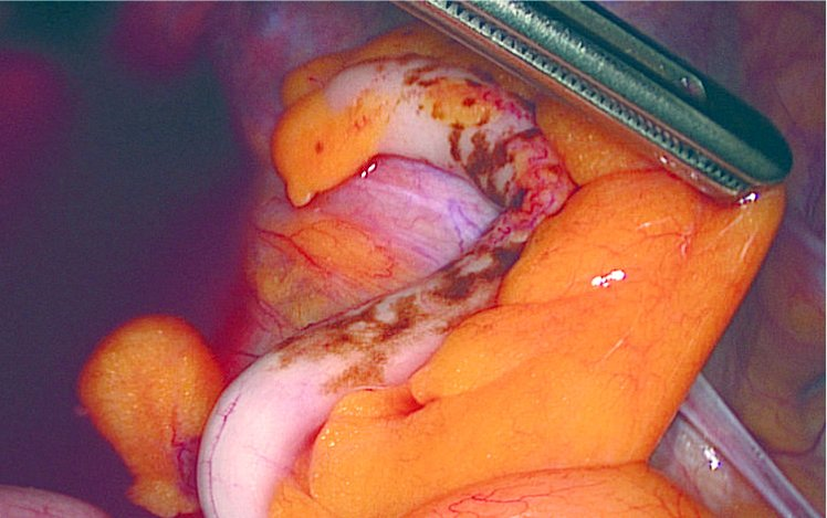 endometriose einstufung
