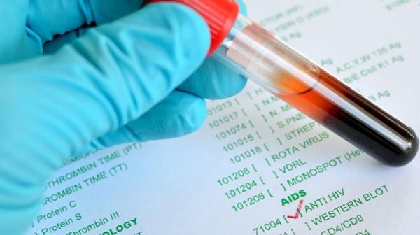 Zahl der Neuinfektionen weitgehend stabil