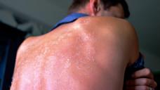 Eine Verbrennung zweiten Grades muss von einem Arzt behandelt werden. (b / Foto:koldunova_anna / stock.adobe.com)