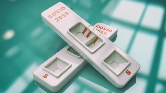 Apotheker dürfen laut IfSG nicht auf SARS-CoV-2 in der Apotheke testen, die Feststellung übertragbarer Krankheiten nach Infektionsschutzgesetz obliegt allein dem Arzt. Doch ist es eine Straftat? (m / Foto:Monika Wisniewska / stock.adobe.com)