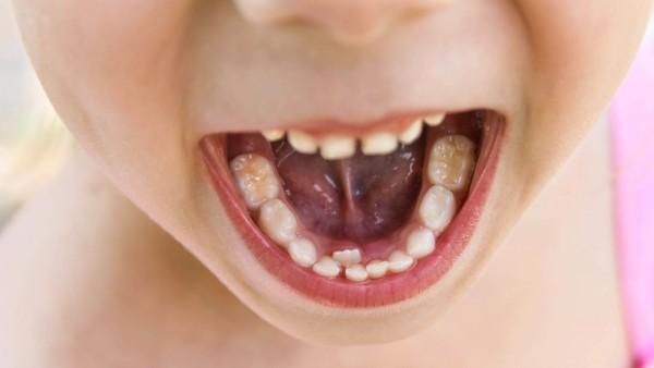 Londoner Eltern: Eher zur Apotheke als zum Zahnarzt