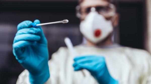 Preis für PCR-Tests sinkt auf 39,40 Euro
