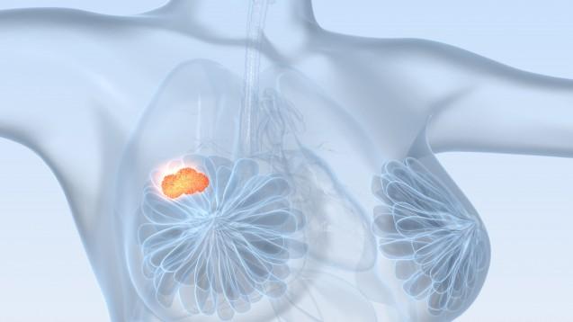 Ein neuer Wirkstoff gegen Brustkrebs hat in einer Phase-III-Studie vielversprechende Ergebnisse geliefert. (Foto: Axel Kock / Fotolia)