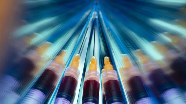 Zehn Impfstoffkandidaten gegen COVID-19 befinden sich bereits in der klinischen Phase der Testung. (c / Foto: imago images / Future Image)