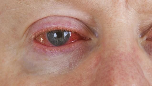 Vielleicht eine Augengrippe? Ein rotes Auge kann vielfältige Ursachen haben. (Foto:Birgit Reitz-Hofmann / Fotolia)