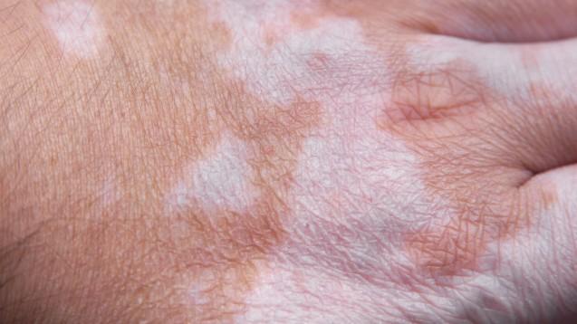 Vitiligo – dieWeißfleckenkrankheit – ist zwar eine ungefährliche Hauterkrankung, aber die Pigmentstörung kann eine große psychische Belastung sein.(Foto: axel bueckert / EyeEm / stock.adobe.com)