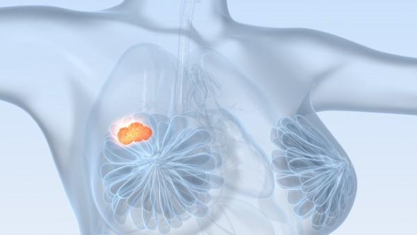 Neuer Kinase-Inhibitor zur Brustkrebs-Therapie