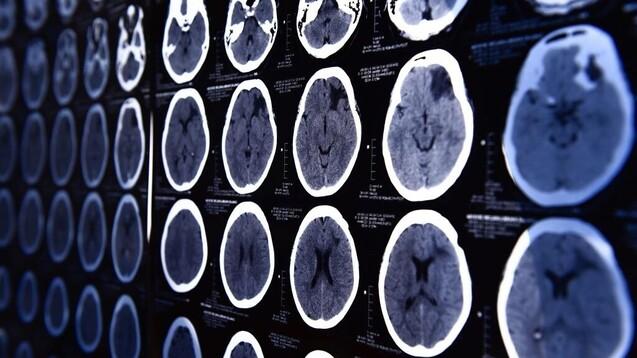 Unter anderem bei CT-Untersuchungen kommen iodhaltige Röntgenkontrastmittel zum Einsatz. (Foto:nimon_t /dobeStock)
