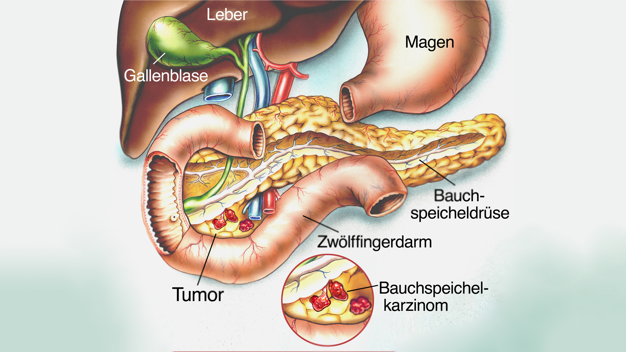 Bauchspeicheldrüsenkrebs