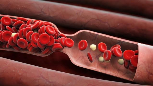 Vitamin K: Beteiligt an vielen Prozessen, es kontrolliert die Blutgerinnung. (Foto: adimas / Fotolia)