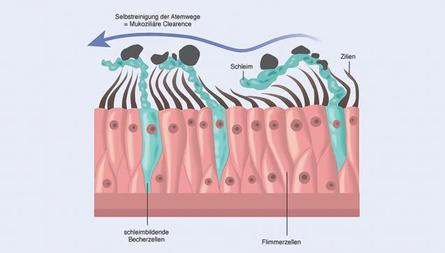 C wie Clearance: Als mukoziliäre Clearance bezeichnet man den Selbstreinigungsmechanismus, mit dem sich die unteren Atemwege von eingedrungenem Staub und/oder Erregern befreien. Er ist bei gesunden Menschen sehr effektiv. Bei einer Erkältung funktioniert die mukoziliäre Clearance dagegen nur noch eingeschränkt oder gar nicht mehr. (Grafik: Prospan)