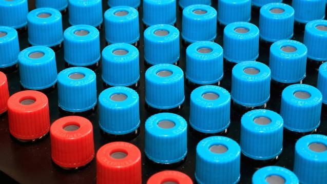 Auch die FDA konnte bei einem weiteren Hersteller NDMA nachweisen. (c / Foto: imago)
