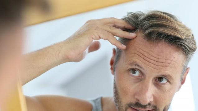 Wehret den Anfängen: Viele Männer erkundigen sich bei beginnendem Haarausfall in der Apotheke nach Haarwuchsmitteln. (Foto:goodluz / Fotolia)