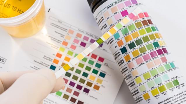 Hersteller von Gliflozinen empfahlen 2015 in Informationsschreiben, bei Azidose-Verdacht unter einer Gliflozin-Therapie einen Test auf Ketonkörper vorzunehmen. Aber reicht das? (s / Foto:Lothar Drechsel / stock.adobe.com)