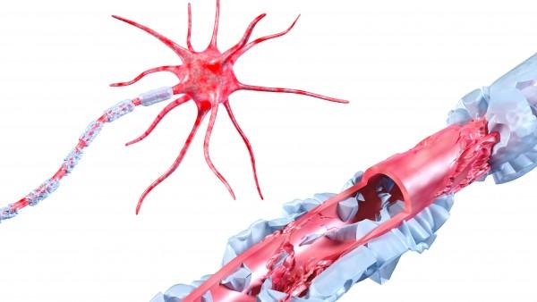 Neues Arzneimittel bei Multipler Sklerose
