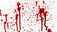 Für unstillbare Blutungen unter Pradaxa gibt es bislang kein zugelassenes spezifisches Antidot (Bild: BirgitKorber/Fotolia.com)