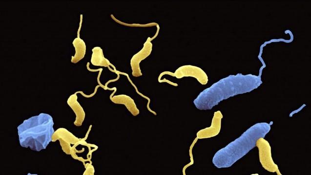 Um sich fortzupflanzen, befällt das Bakterium Bdellovibrio bacteriovorus (gelb) andere Bakterien (blau).