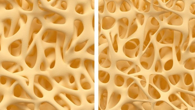 Illustration (Ausschnitt): Gesunde Knochenstruktur - und solche mit Osteoporose. (Foto: eranicle / Fotolia)