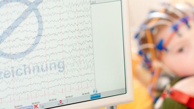 CBD als Arzneimittel bei Epilepsie: Der CHMP empfiehlt, Epidyolex bei Lennox-Gastaut-Syndrom und Dravet-Syndrom auch in Europa zuzulassen. (s / Foto: Tobilander / stock.adobe.com)