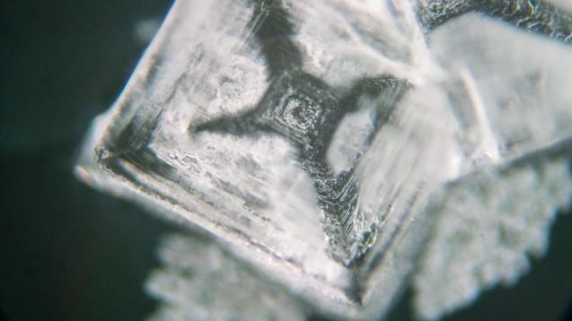 Uratkristalle sind unter dem Mikroskop schön anzusehen, können aber sehr schmerzhaft sein, wenn sie in der Synovialflüssigkeit ausfallen und einen verheerenden inflammatorischen Teufelskreis verursachen. (Foto: luchschenF / stock.adobe.com)