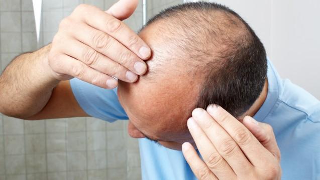 Wer seinen Haarausfall mit Minoxidil bekämpft, riskiert allergische Reaktionen. (Foto:Kurhan / Fotolia)