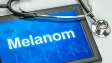 Nivolumab beim Melanom: nachgereichte Daten verbessern das Bewrtungsergebnis (BIld: Zerbor: Fotolia.com)