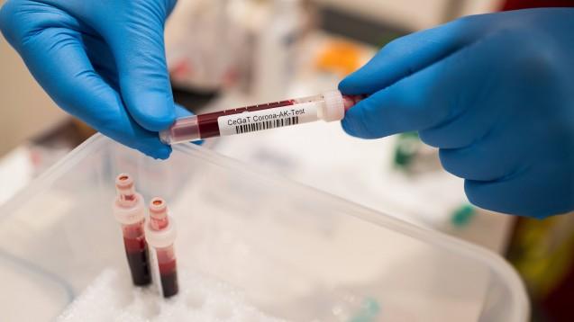 Das Robert Koch-Institut verfolgt zur Forschung an SARS-CoV-2-Antikörpern verschiedeneAnsätze. (s / Foto: imago images / rheinmainfoto)