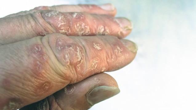 Nur eine Hauterkrankung? Eine Händedesinfektion mit Psoriasis an der Hand fühlt sich an wie Feuer. (s/Foto:imagoimages/RolfBraun)