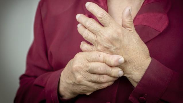 Tofacitinib ist ein Januskinase-Hemmer (JAK-Inhibitor) und wird zur Behandlung der mittelschweren bis schweren aktiven rheumatoiden Arthritis (RA) oder aktiven Psoriasis-Arthritis (PsA) bei erwachsenen Patienten eingesetzt. (Symbolfoto: hriana / AdobeStock)